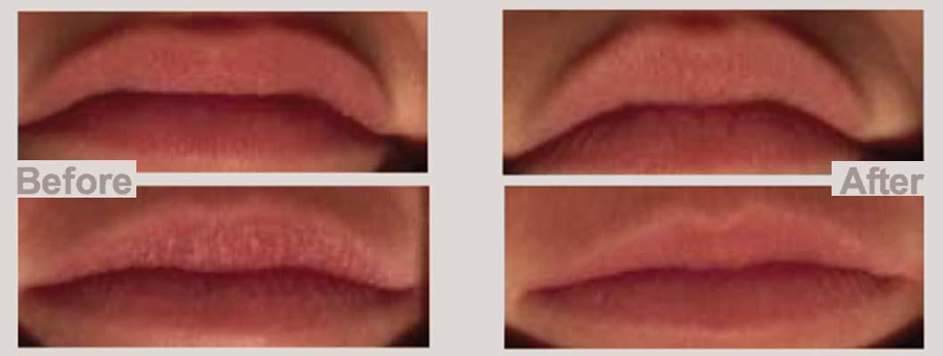 maxi-lip